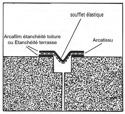 Arcatissu-joint-dilatation.png